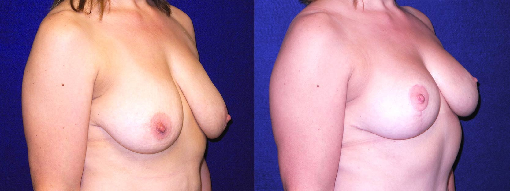Right 3/4 View - Breast Lift After Pregnancy & Weight Loss