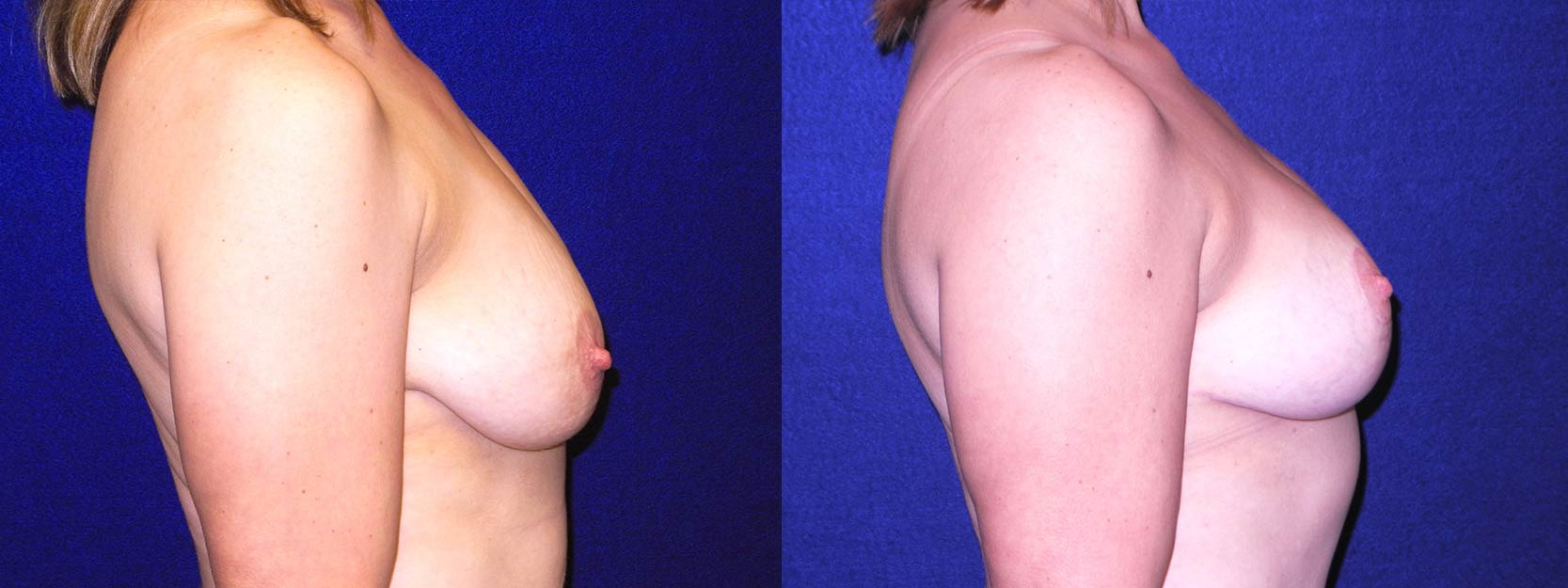 Right Profile View - Breast Lift After Pregnancy & Weight Loss