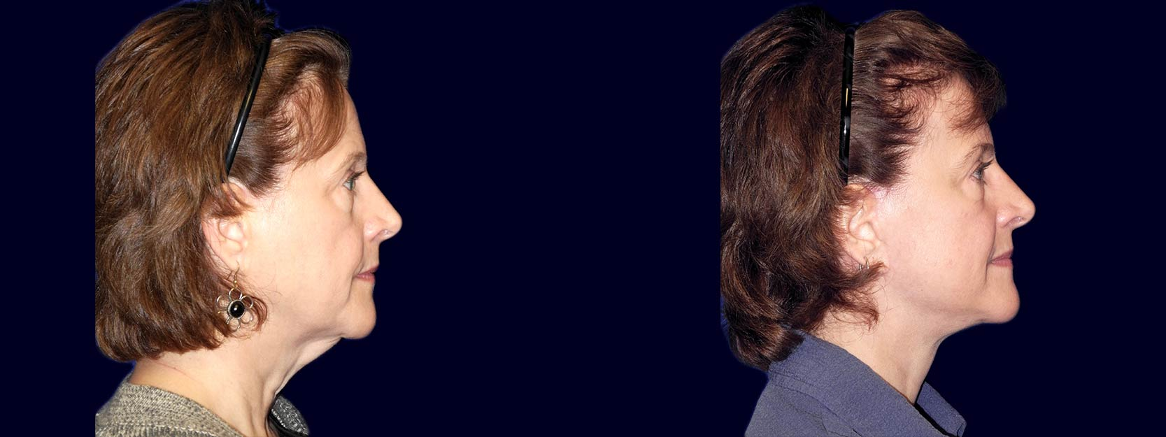 Right Profile View - Lower Facelift