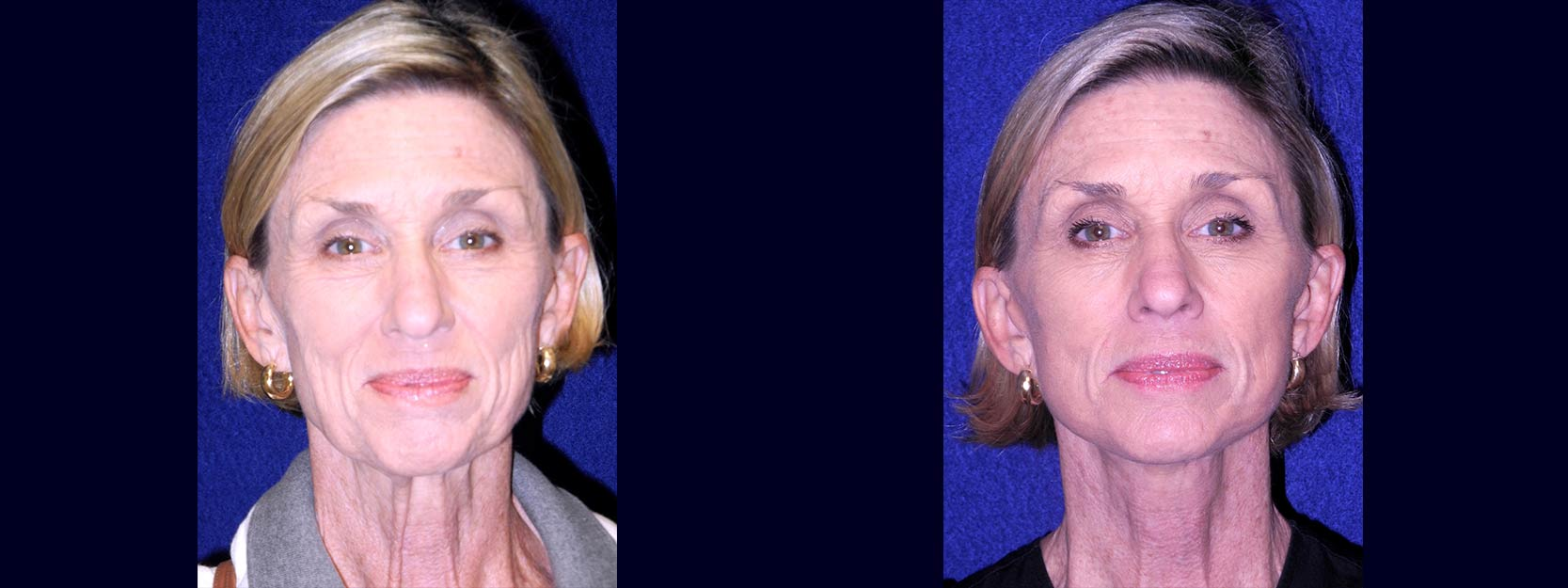 Frontal View - Lower Facelift