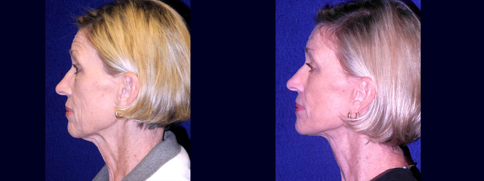 Left Profile View - Lower Facelift