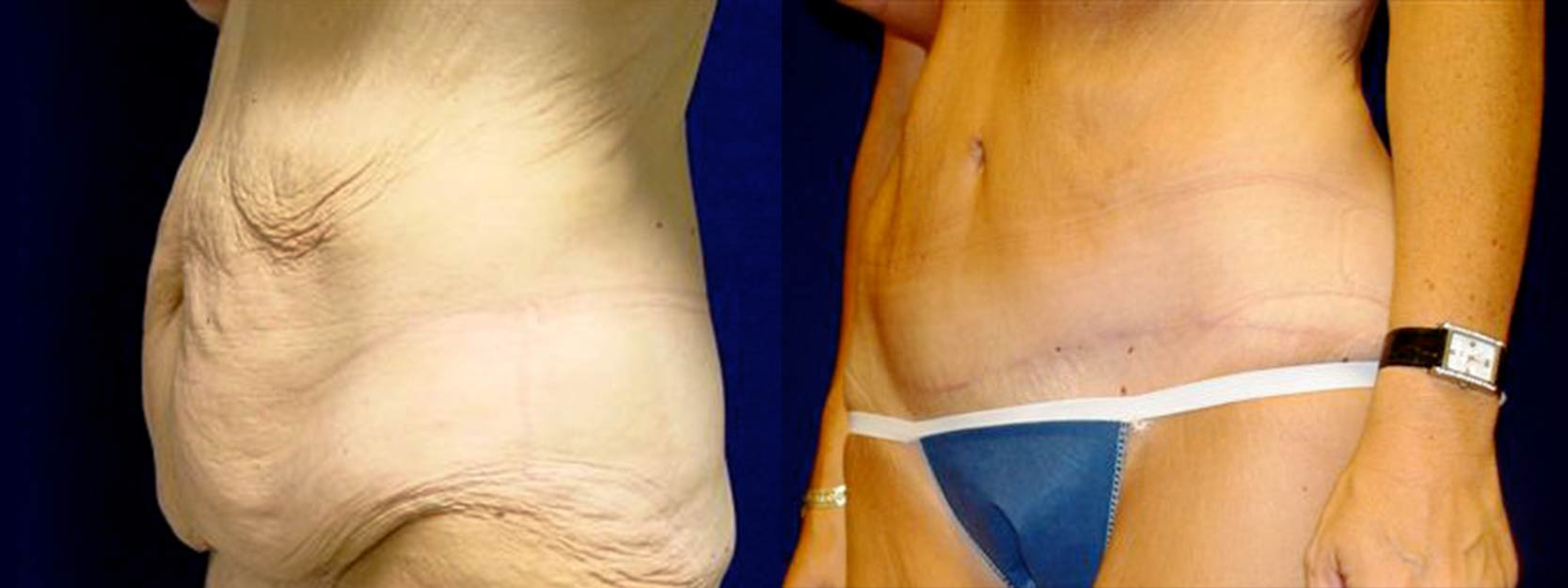 Left 3/4 View - Tummy Tuck After Massive Weight Loss