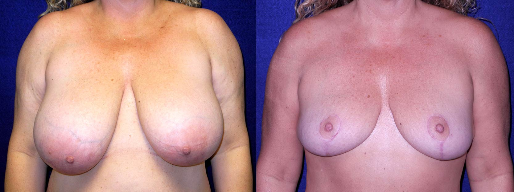 Frontal View - Breast Reduction After Pregnancy