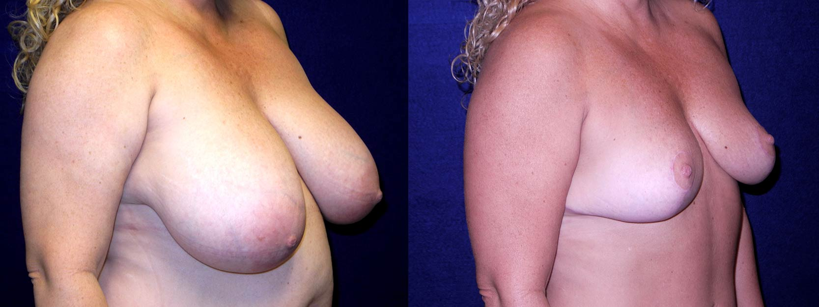 Right 3/4 View - Breast Reduction After Pregnancy