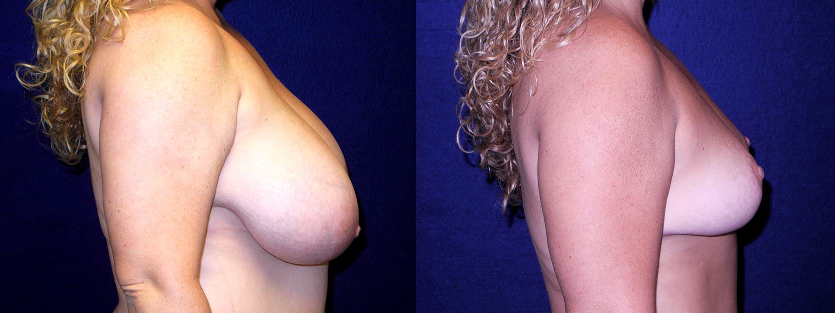 Right Profile View - Breast Reduction After Pregnancy