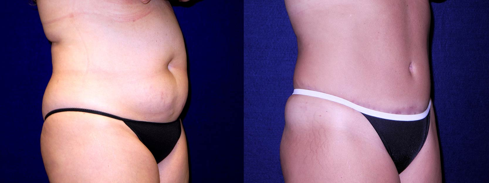 Right 3/4 View - Tummy Tuck After Pregnancy