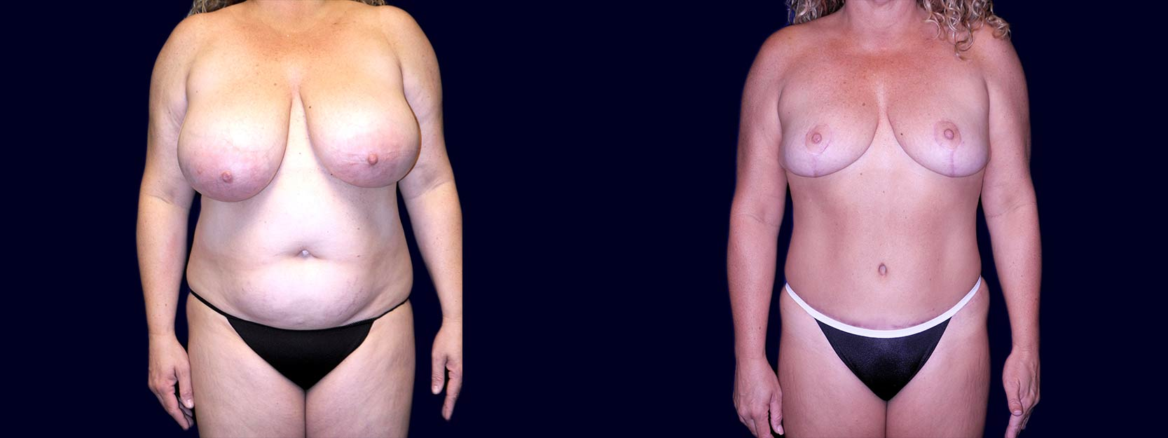 Frontal View - Breast Reduction and Tummy Tuck After Pregnancy