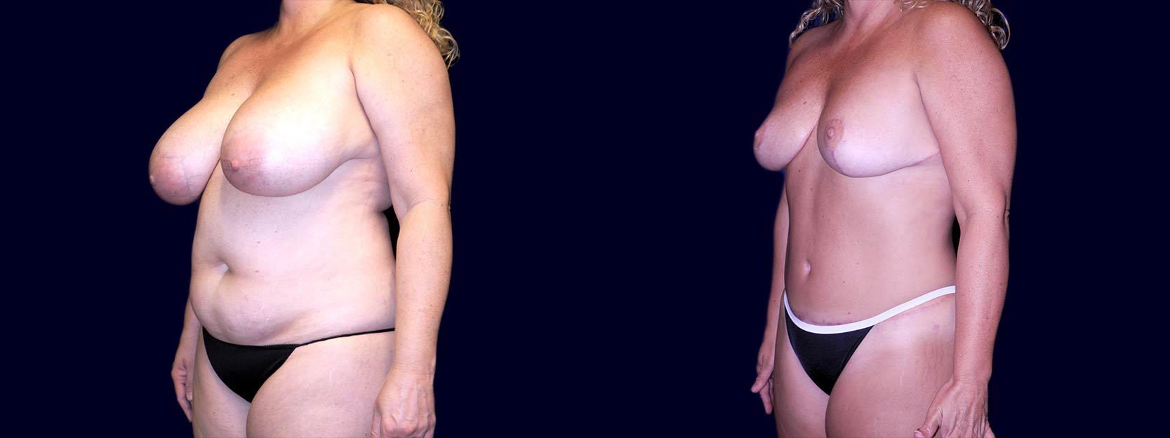 Left 3/4 View - Breast Reduction and Tummy Tuck After Pregnancy