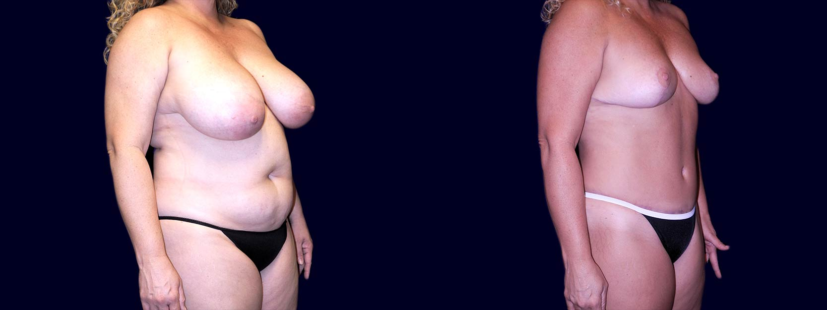 Right 3/4 View - Breast Reduction and Tummy Tuck After Pregnancy