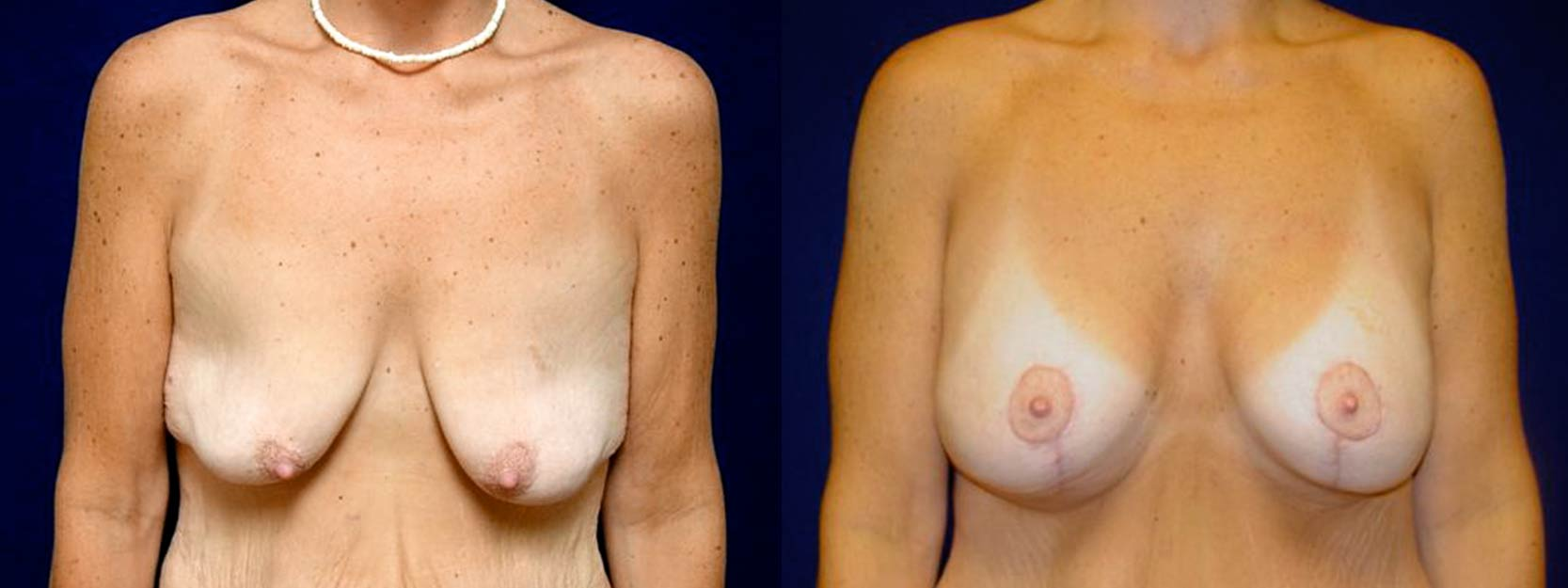 Frontal View - Breast Augmentation with Lift After Massive Weight Loss