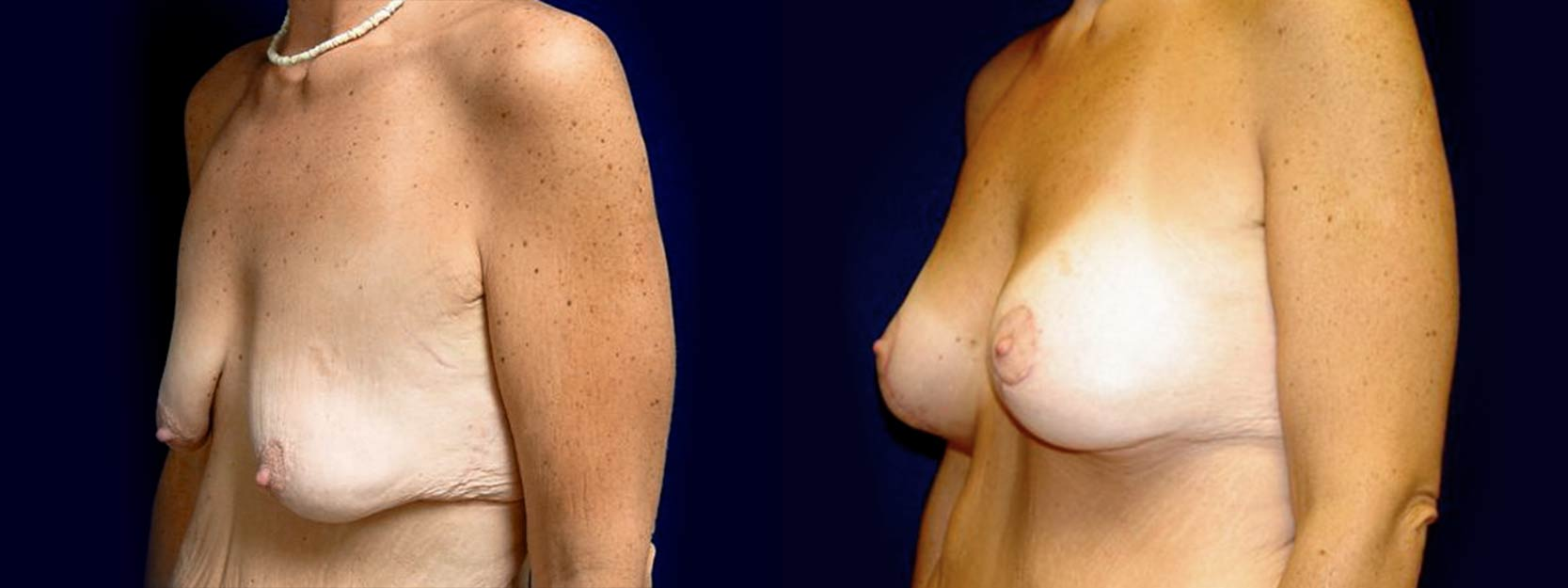 Left 3/4 View - Breast Augmentation with Lift After Massive Weight Loss