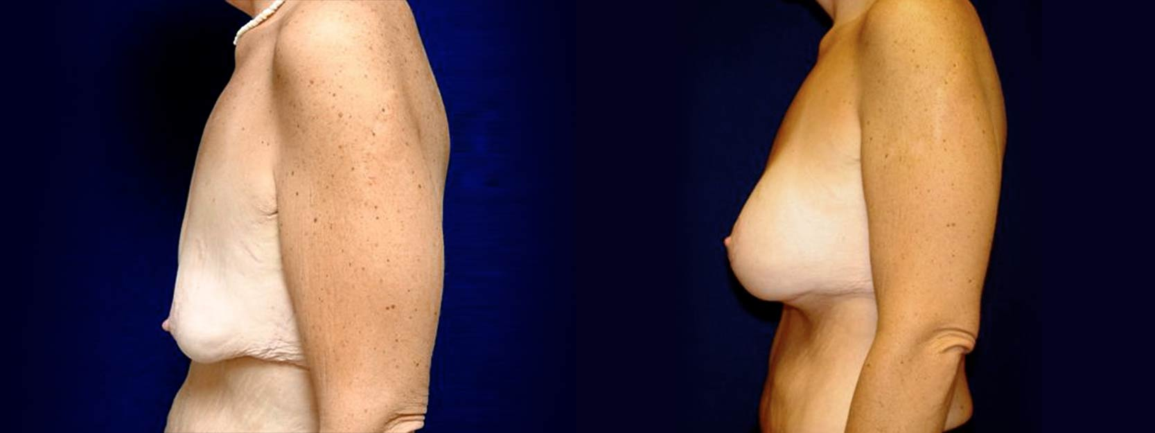 Left Profile View - Breast Augmentation with Lift After Massive Weight Loss