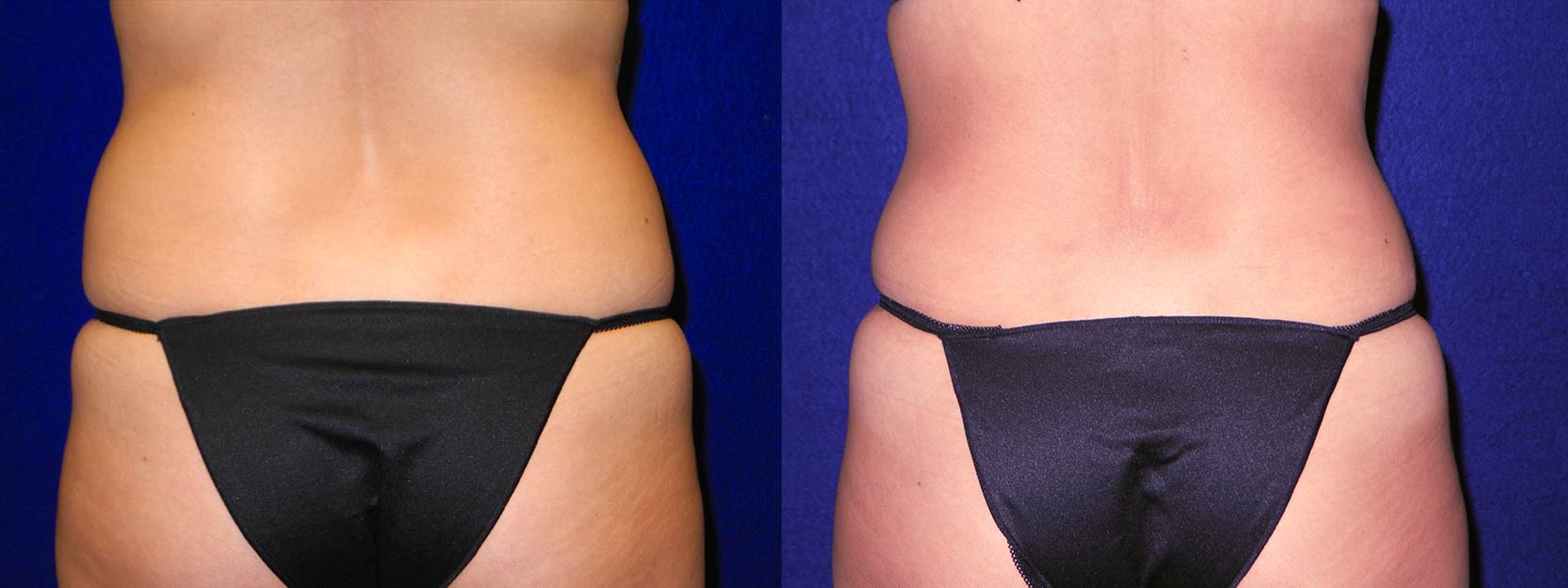 Back View - Tummy Tuck and Liposuction