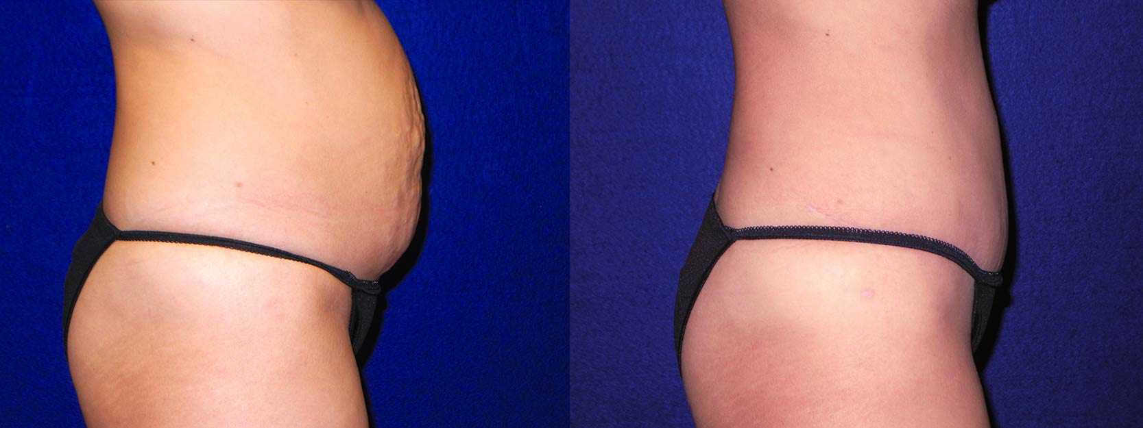 Right Profile View - Tummy Tuck and Liposuction