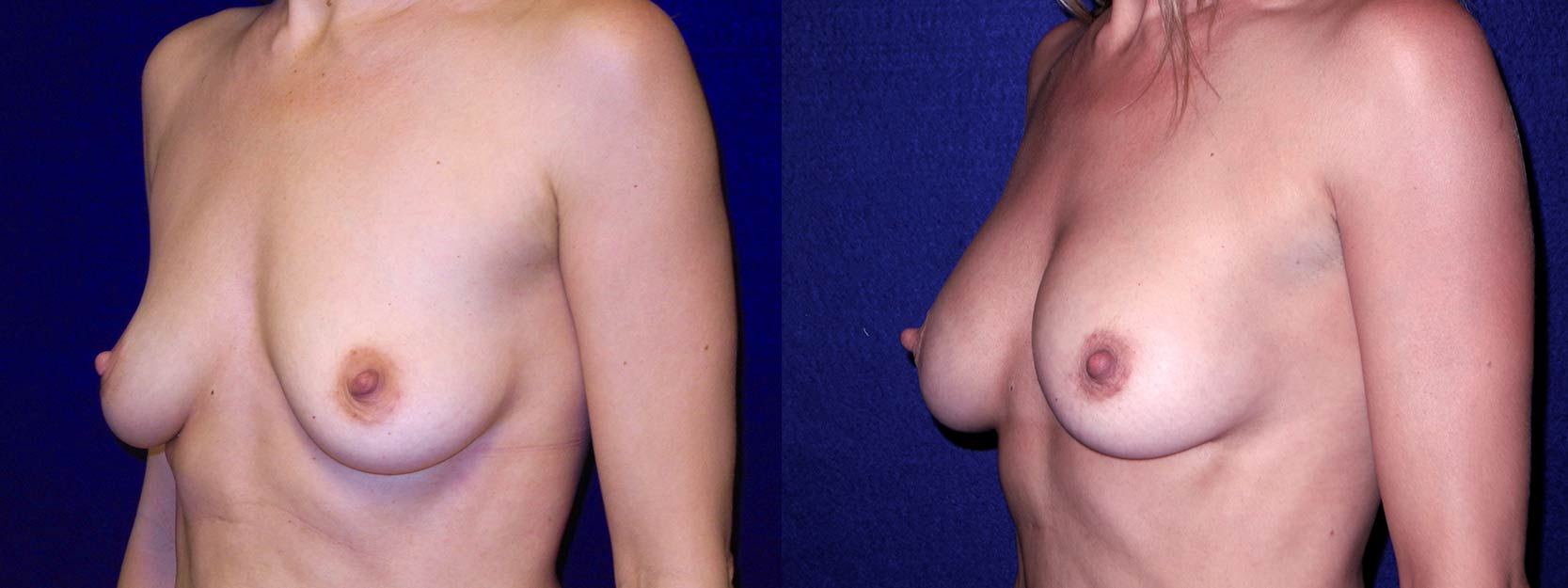 Left 3/4 View - Breast Augmentation After Pregnancy - Silicone Implants