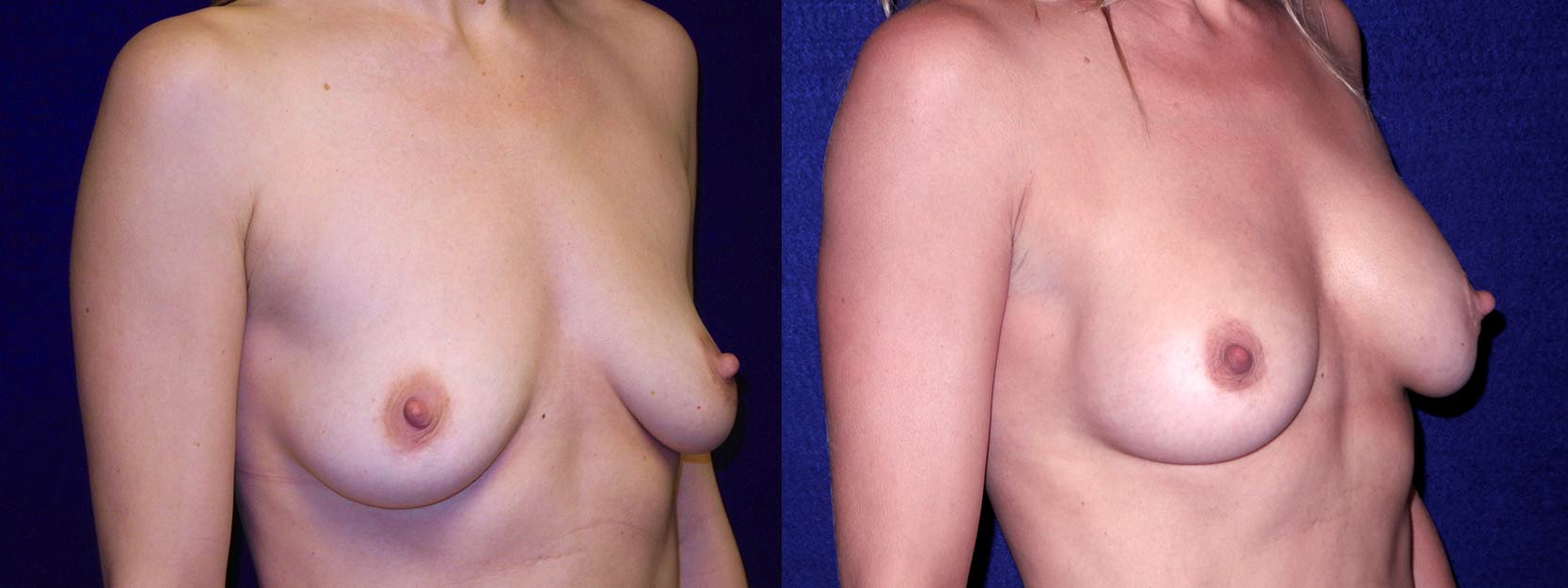 Right 3/4 View - Breast Augmentation After Pregnancy - Silicone Implants