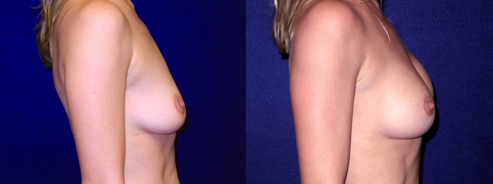 Right Profile View - Breast Augmentation After Pregnancy - Silicone Implants