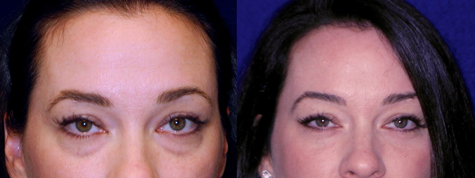 Frontal View - Lower Eyelid Surgery