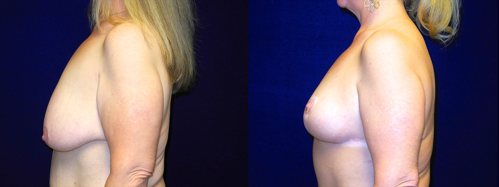 Left Profile View - Breast Lift After Massive Weight Loss