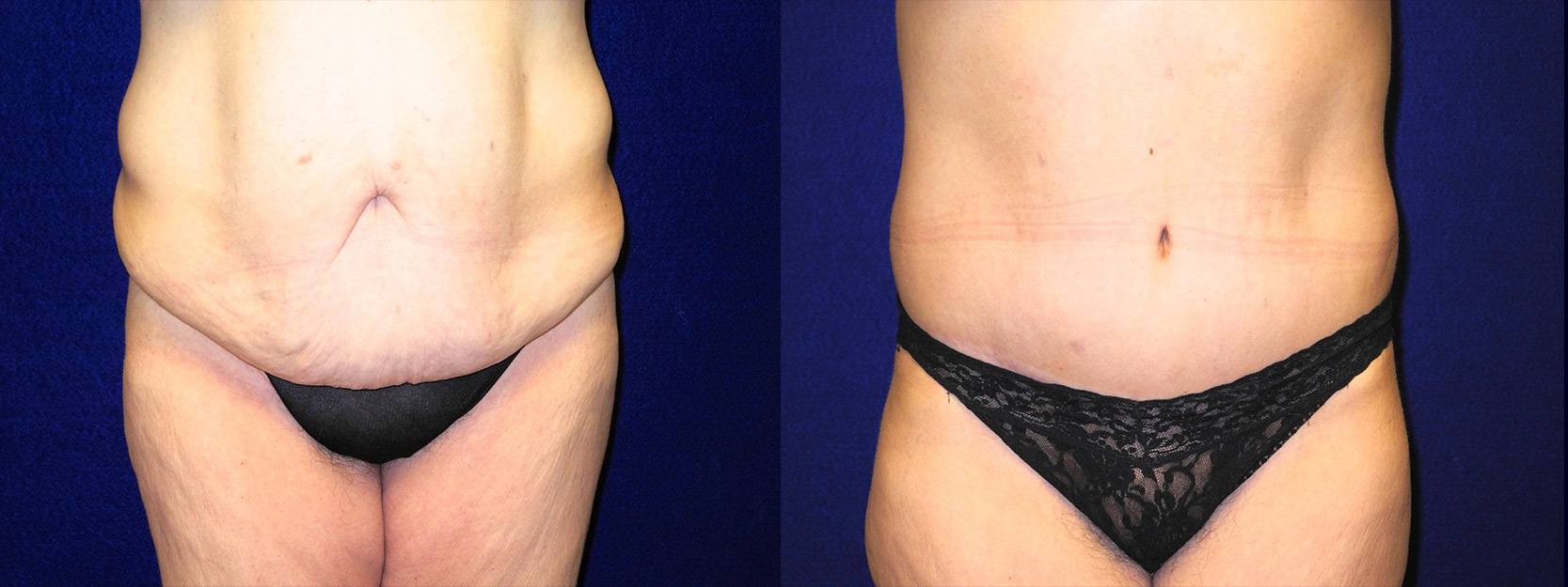 Frontal View - Tummy Tuck After Massive Weight Loss