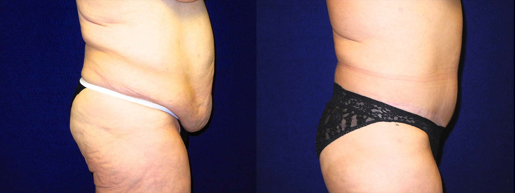 Right Profile View - Tummy Tuck After Massive Weight Loss