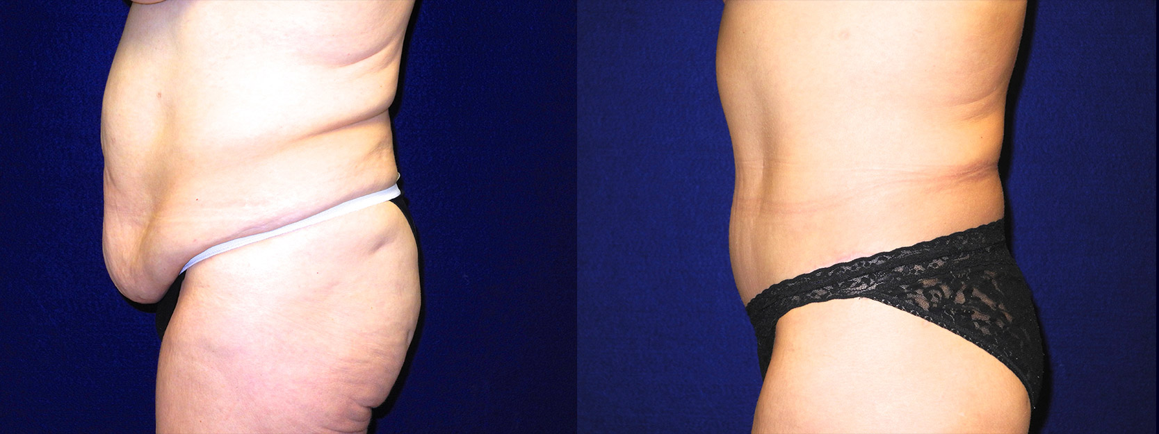 Left Profile View - Tummy Tuck After Massive Weight Loss