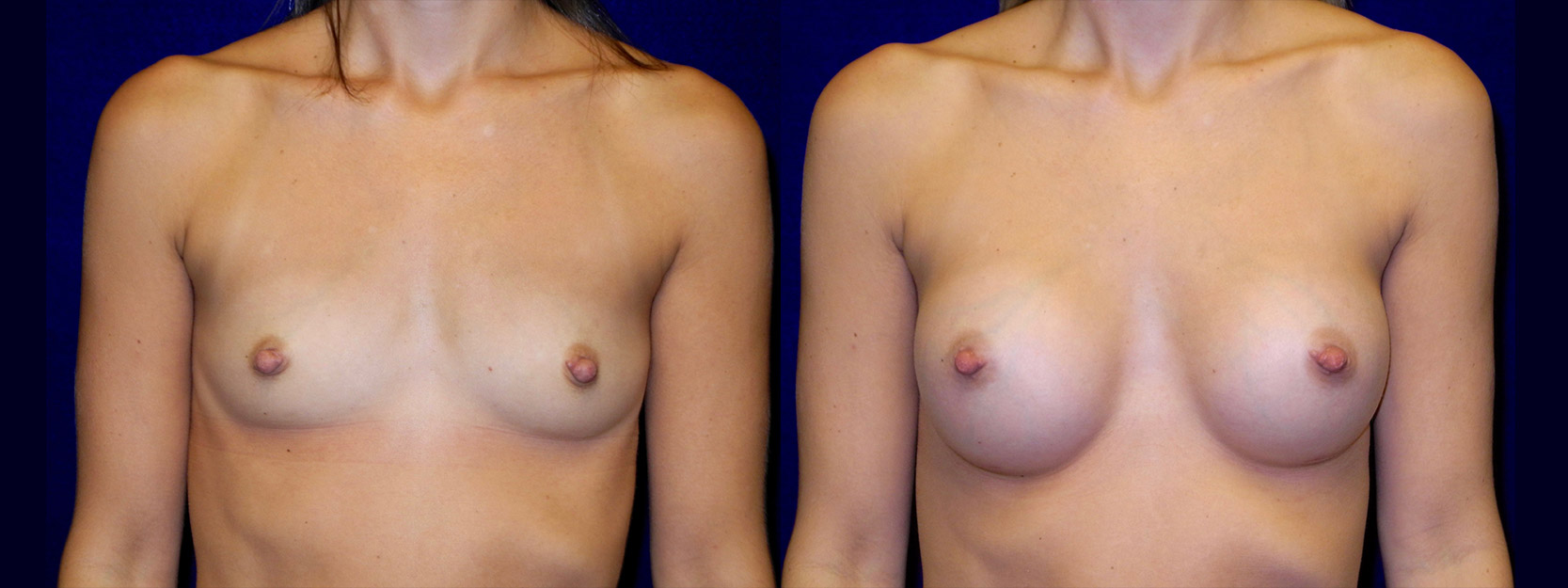 Frontal View - Breast Augmentation - Silicone Implants
