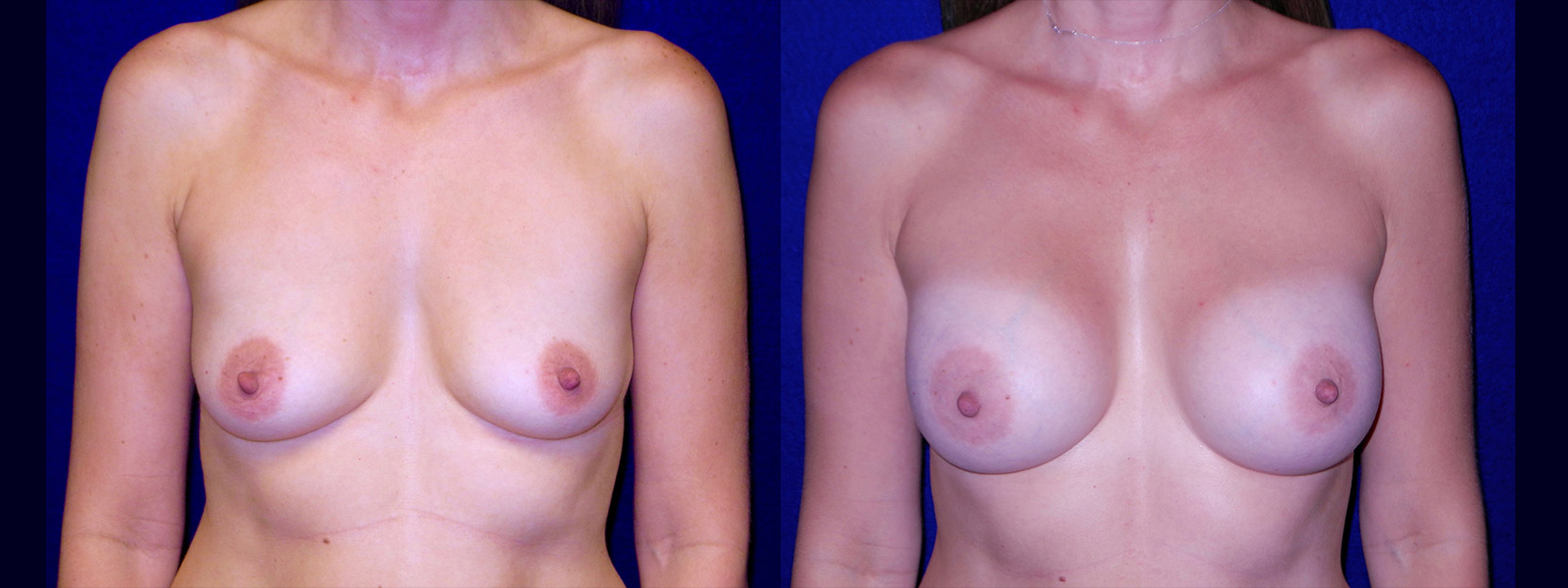 Frontal View - Breast Augmentation After Pregnancy - Silicone Implants
