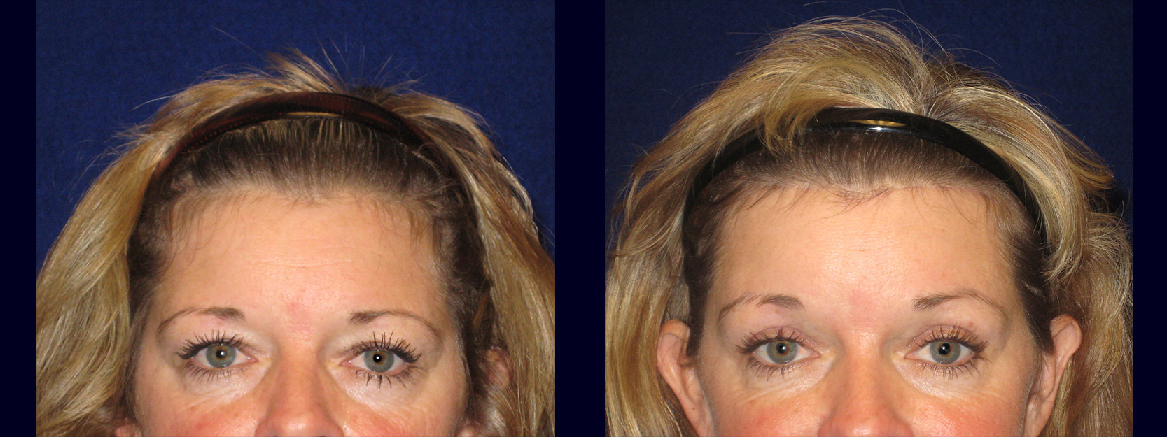 Fontal View - Browlift with Upper Eyelid Surgery