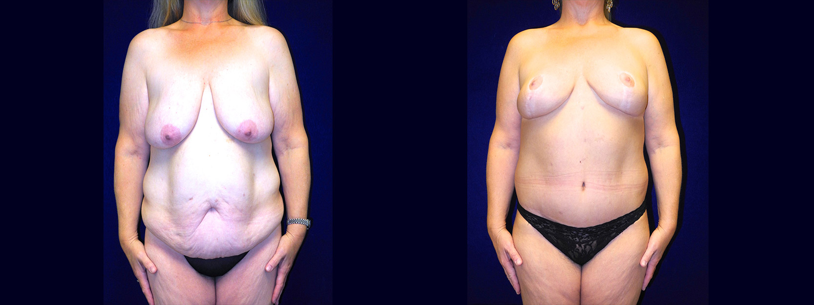 Frontal View - Body Lift After Massive Weight Loss