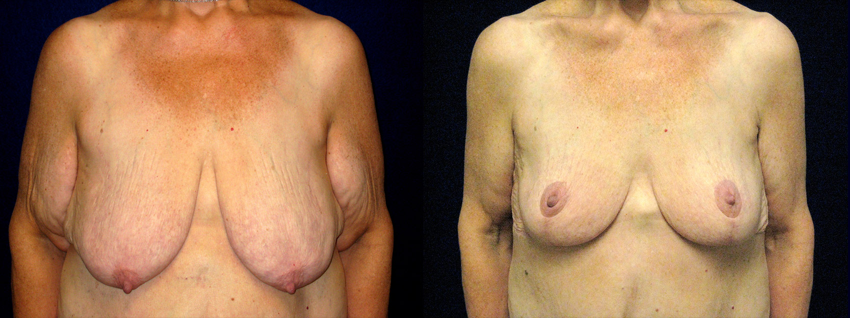 Frontal View - Breast Reduction Mastopexy and Arm Lift After Massive Weight Loss
