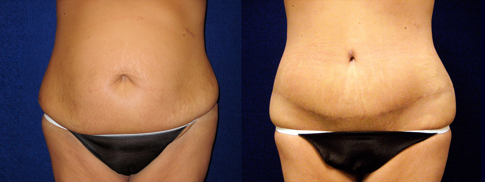 Frontal View - Circumferential Abdominoplasty After Massive Weight Loss