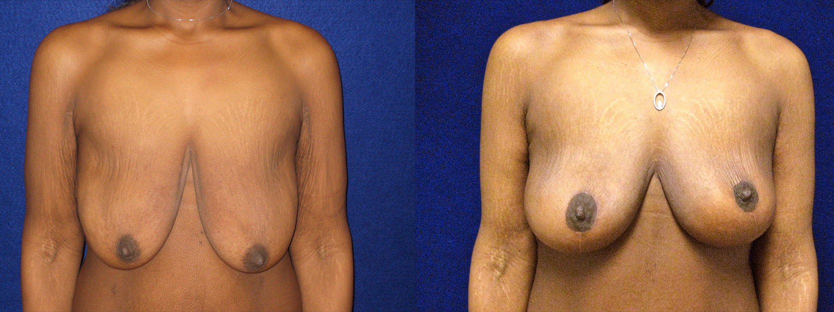 Frontal View - Breast Lift and Arm Lift After Massive Weight Loss