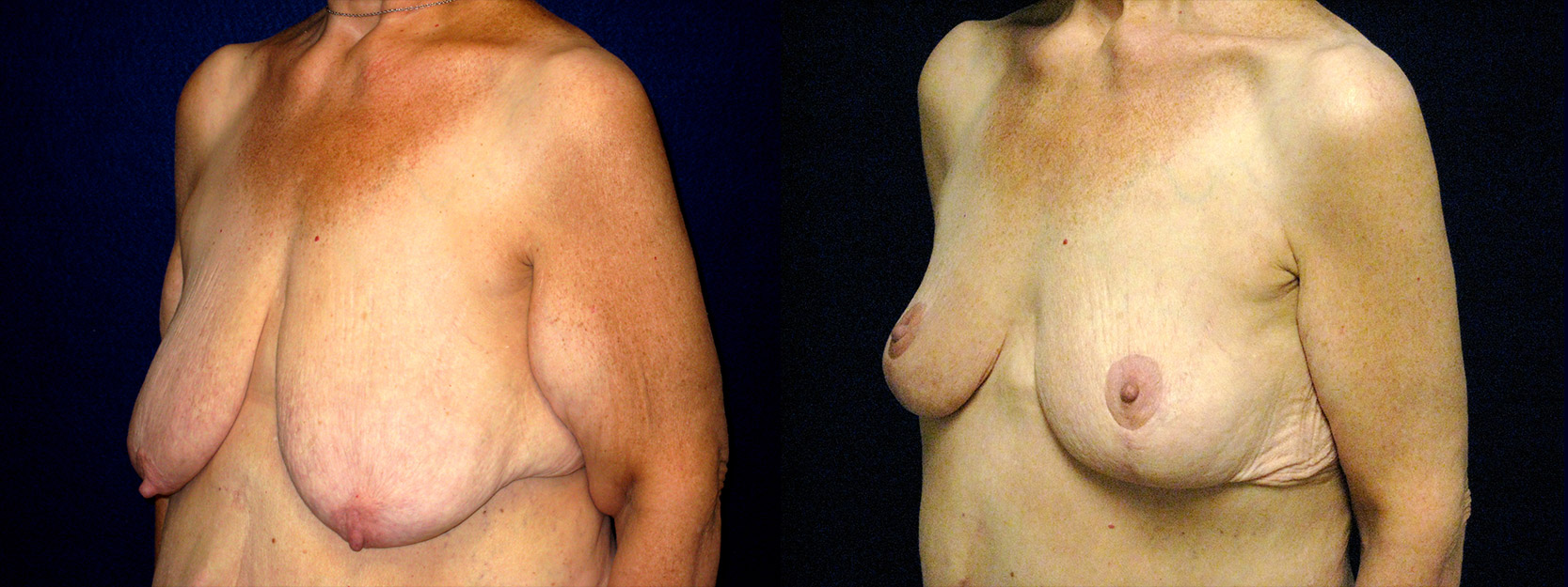 Left 3/4 View - Breast Reduction Mastopexy and Arm Lift After Massive Weight Loss