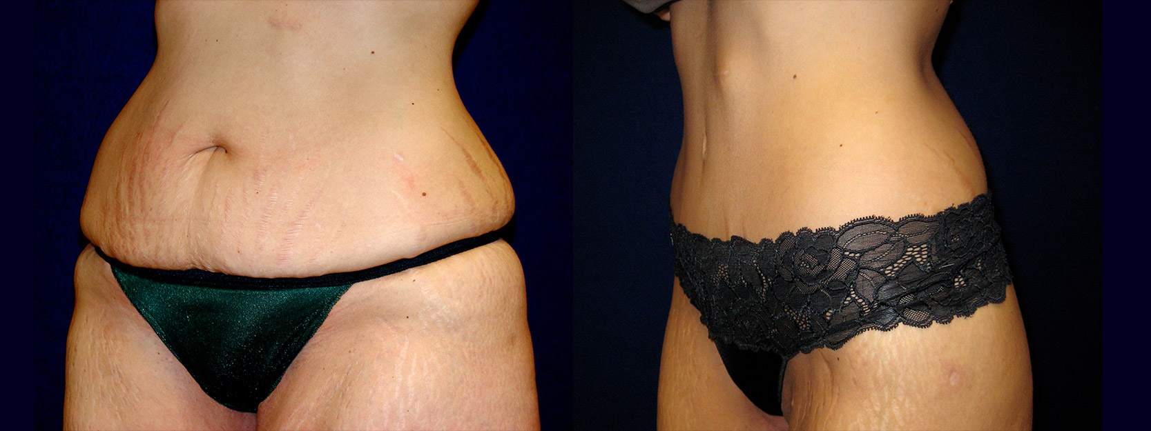 Left 3/4 View - Circumferential Abdominoplasty After Massive Weight Loss