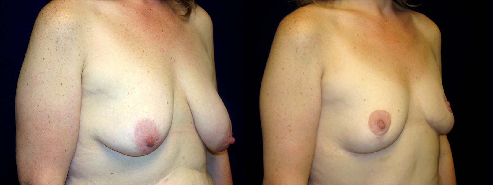 Right 3/4 View - Breast Reduction After Weight Loss