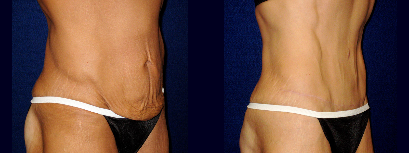 Right 3/4 View - Tummy Tuck After Massive Weight Loss