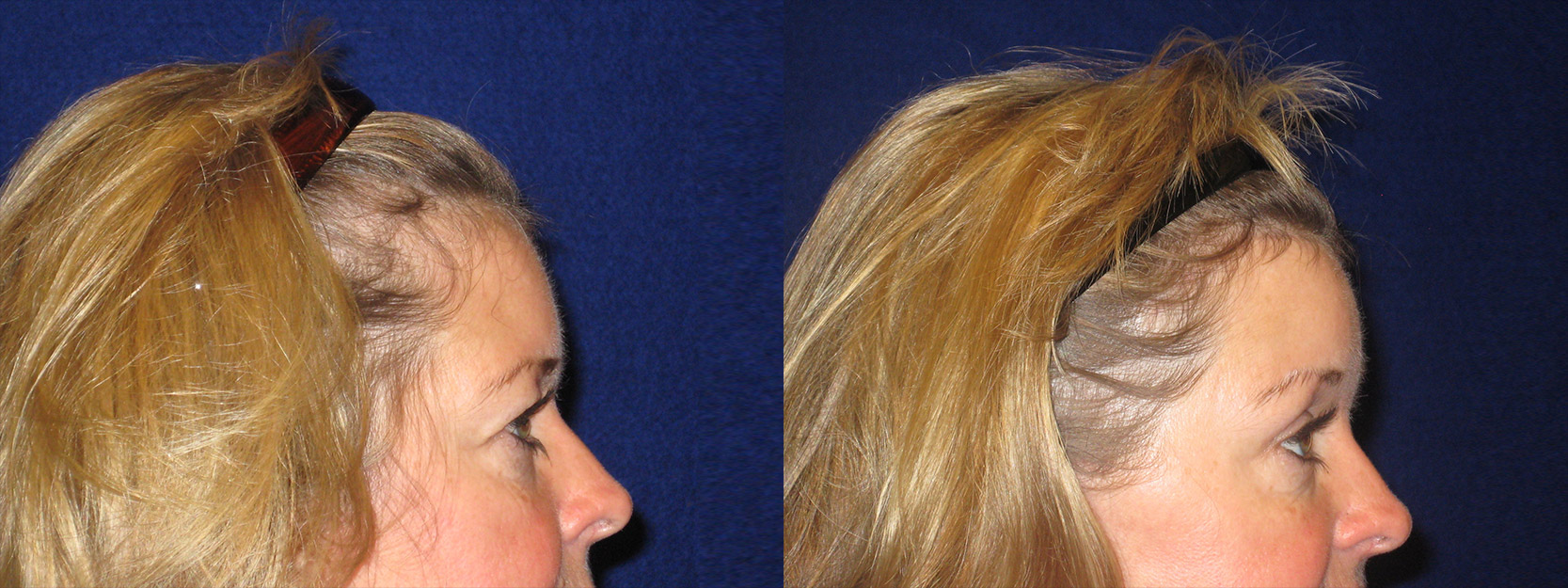 Right Profile View - Browlift with Upper Eyelid Surgery