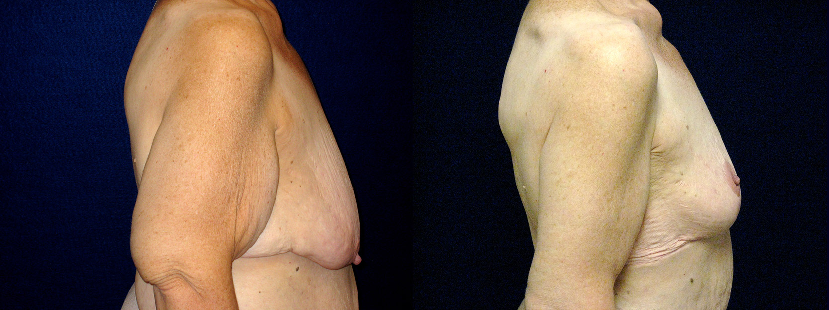 Right Profile View - Breast Reduction Mastopexy and Arm Lift After Massive Weight Loss