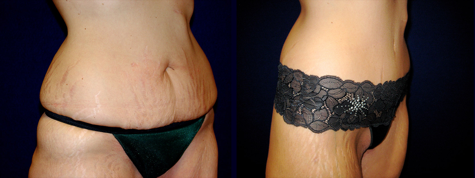 Right 3/4 View - Circumferential Abdominoplasty After Massive Weight Loss