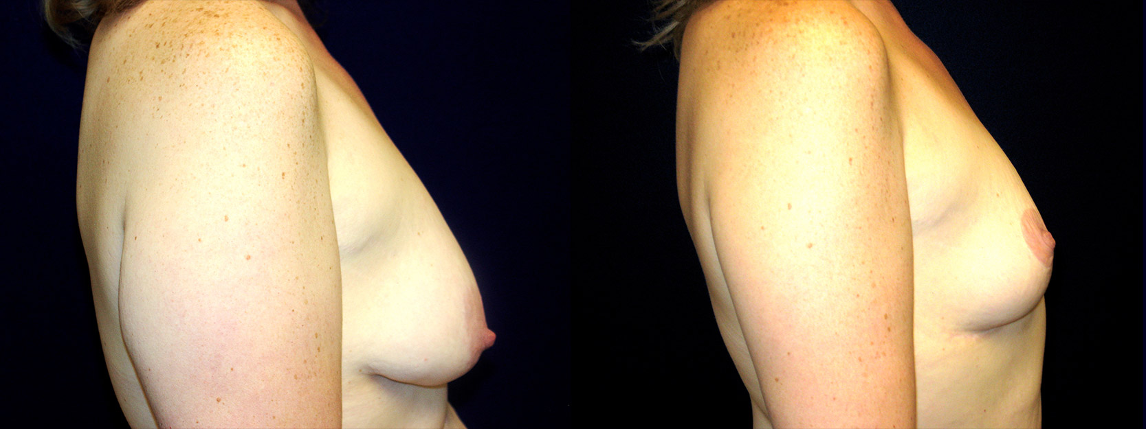 Right Profile View - Breast Reduction After Weight Loss