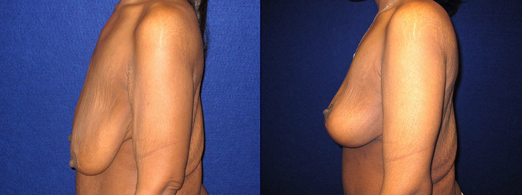 Left Profile View - Breast Lift and Arm Lift After Massive Weight Loss