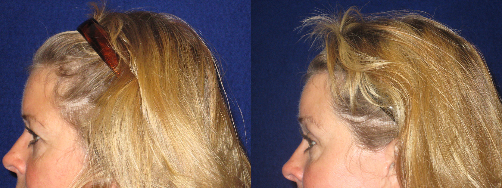 Left Profile View - Browlift with Upper Eyelid Surgery
