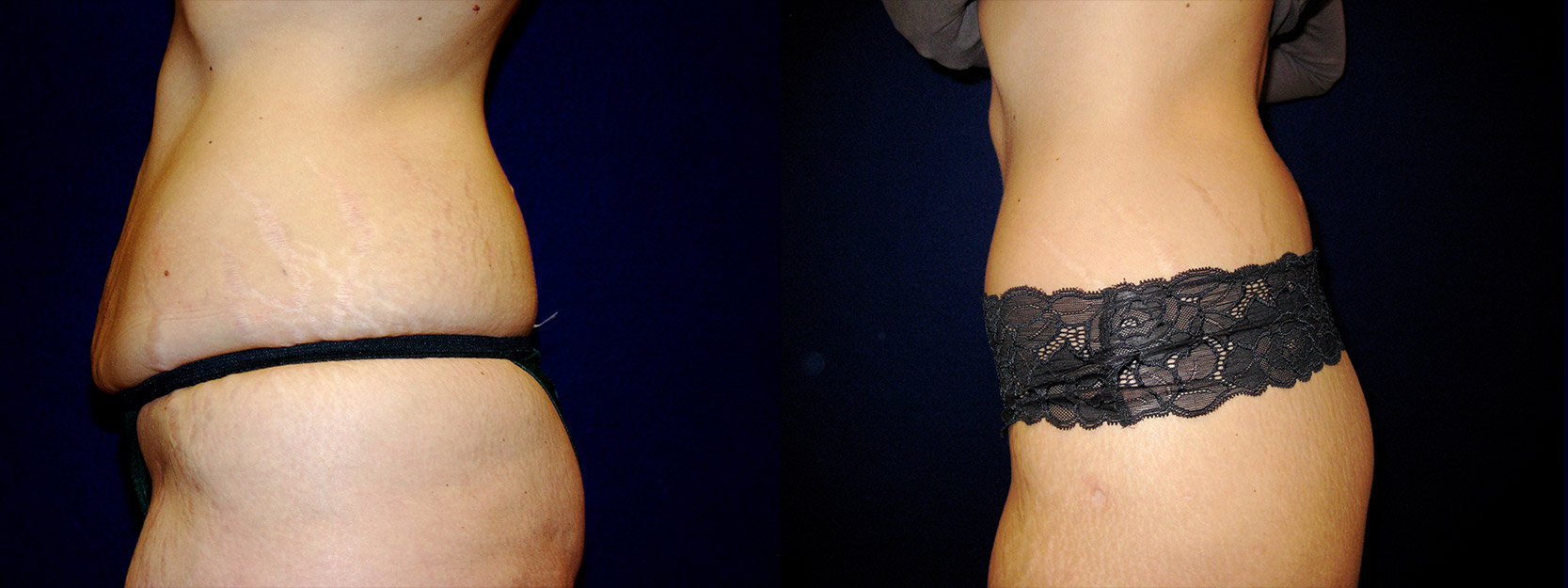 Left Profile View - Circumferential Abdominoplasty After Massive Weight Loss