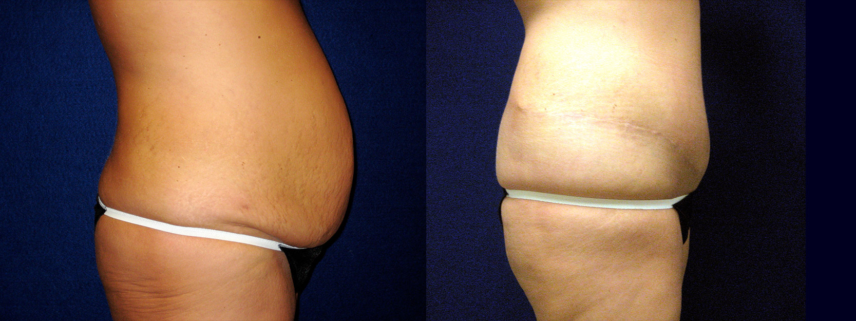 Right Profile View - Circumferential Abdominoplasty After Massive Weight Loss