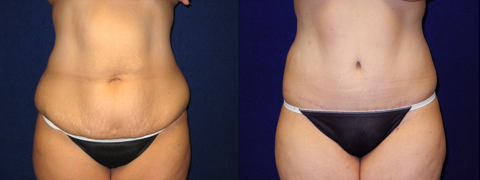 Frontal View - Abdominoplasty After Massive Weight Loss