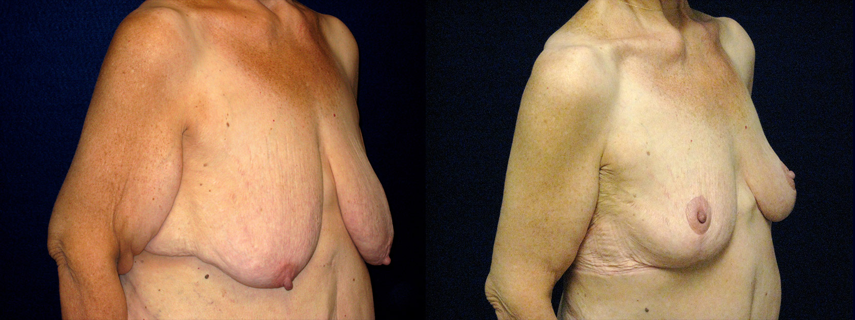 Right 3/4 View - Breast Reduction Mastopexy and Arm Lift After Massive Weight Loss