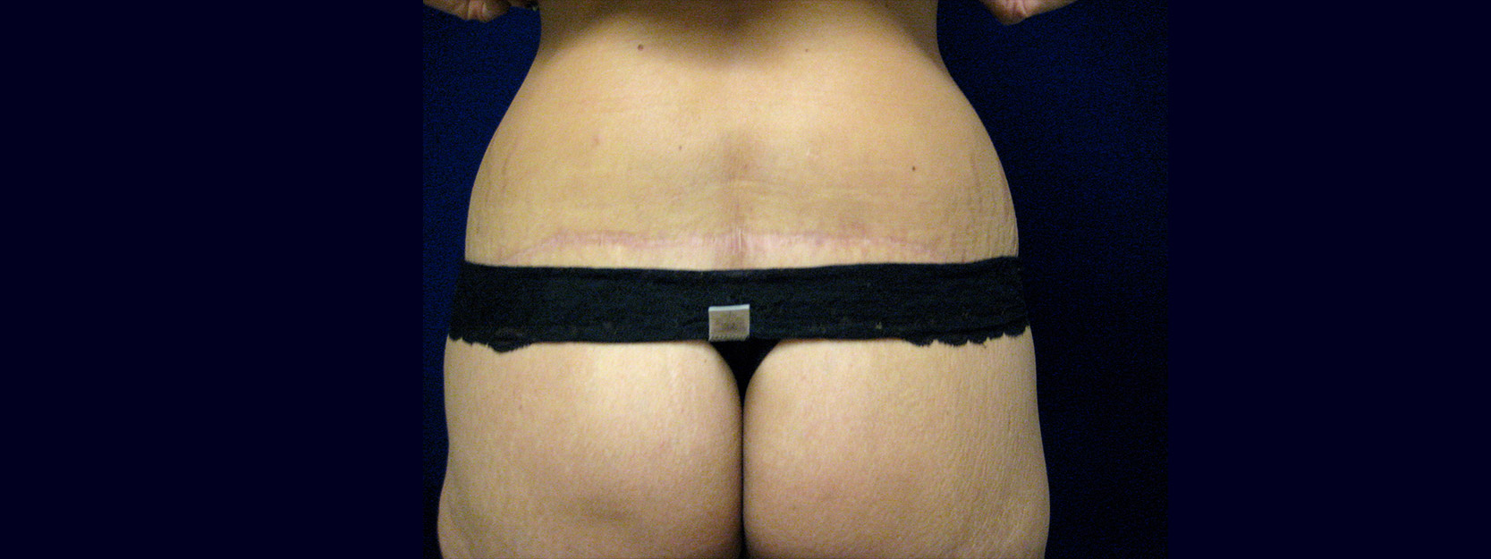 Back View After - Circumferential Abdominoplasty After Massive Weight Loss