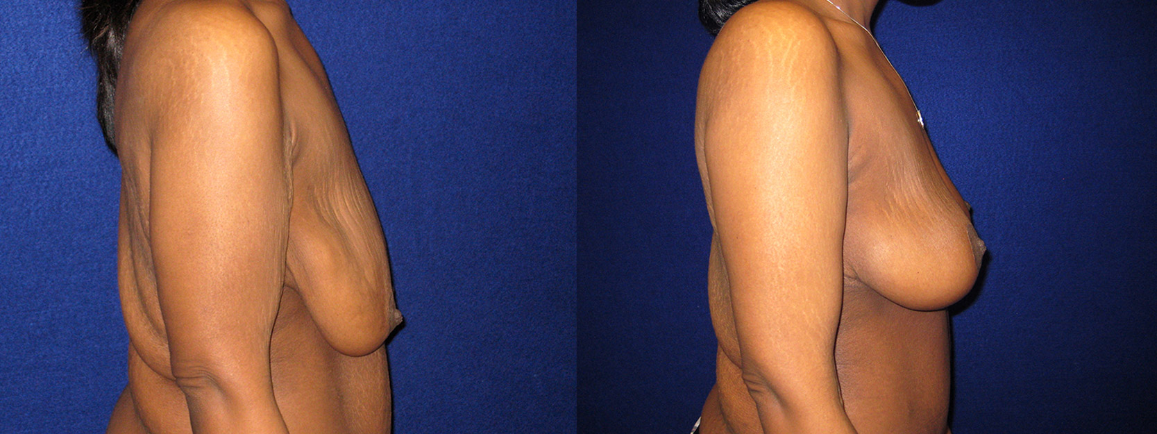 Right Profile View - Breast Lift and Arm Lift After Massive Weight Loss