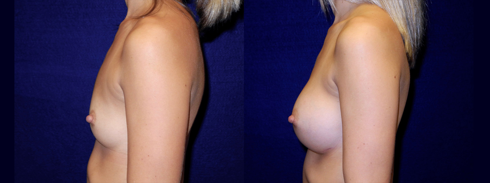 Left Profile View - Breast Augmentation - Silicone Implants